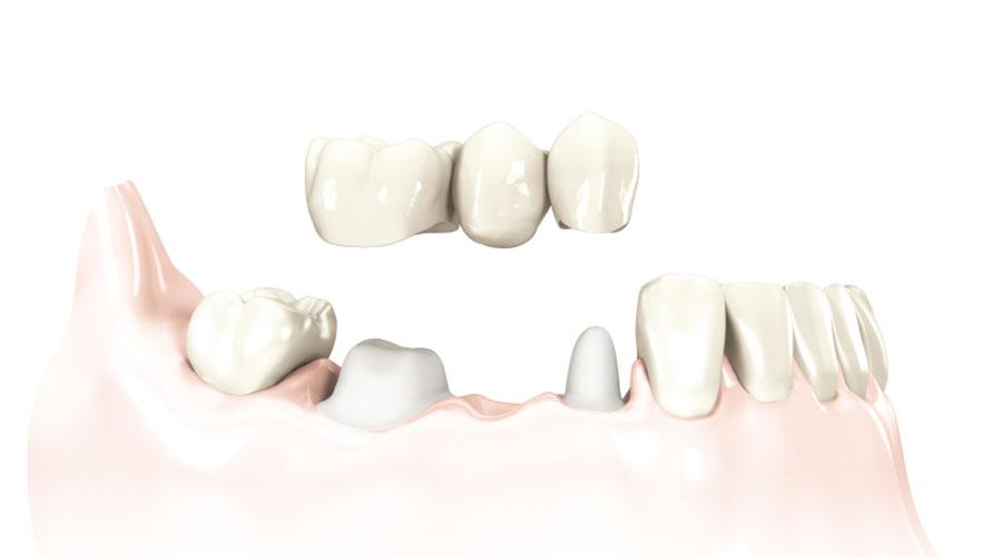 Ihnen fehlen mehrere Zähne?   Sprechstunde Implantologie